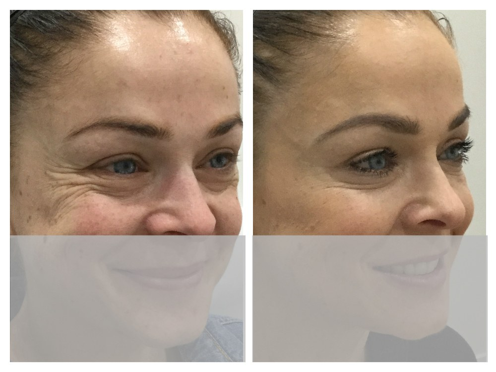 Cosmetic Injections: Anti Wrinkle Treatments & Injections