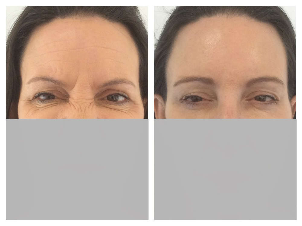 Anti wrinkle injection frown forehead before and after Melbourne Ohana Cosmetic