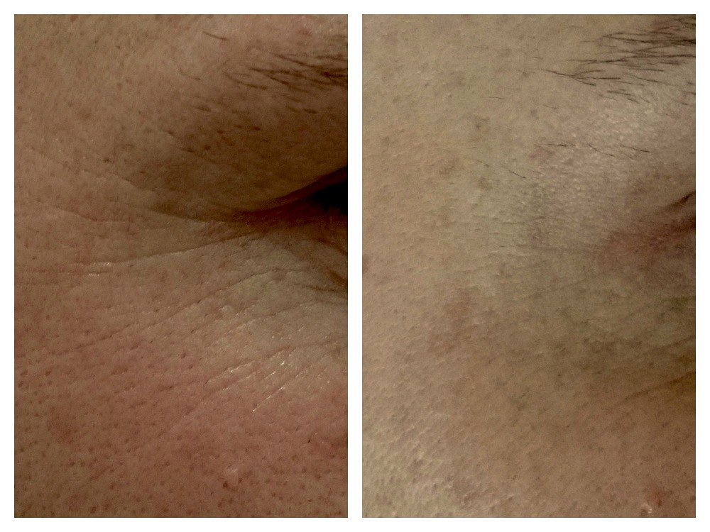 Anti wrinkle injection eye crows feet before and after Melbourne Ohana Cosmetic