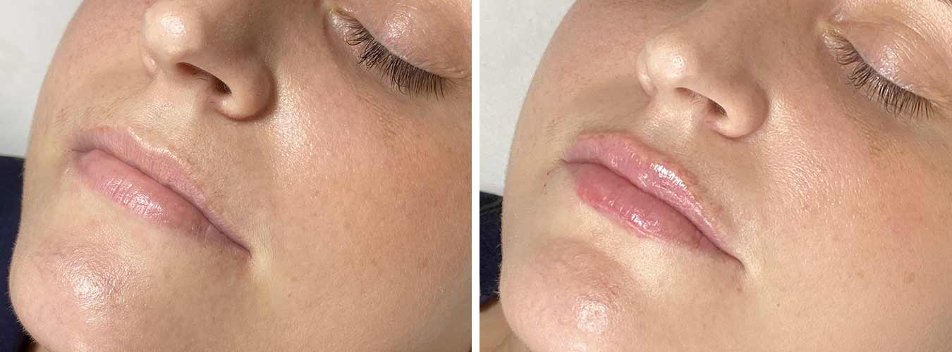 Lip Augmentation Before/After