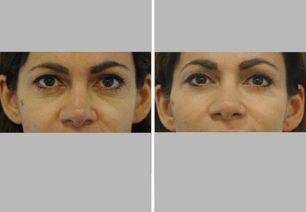 Dermal fillers injection teartrough before and after Melbourne Ohana Cosmetic