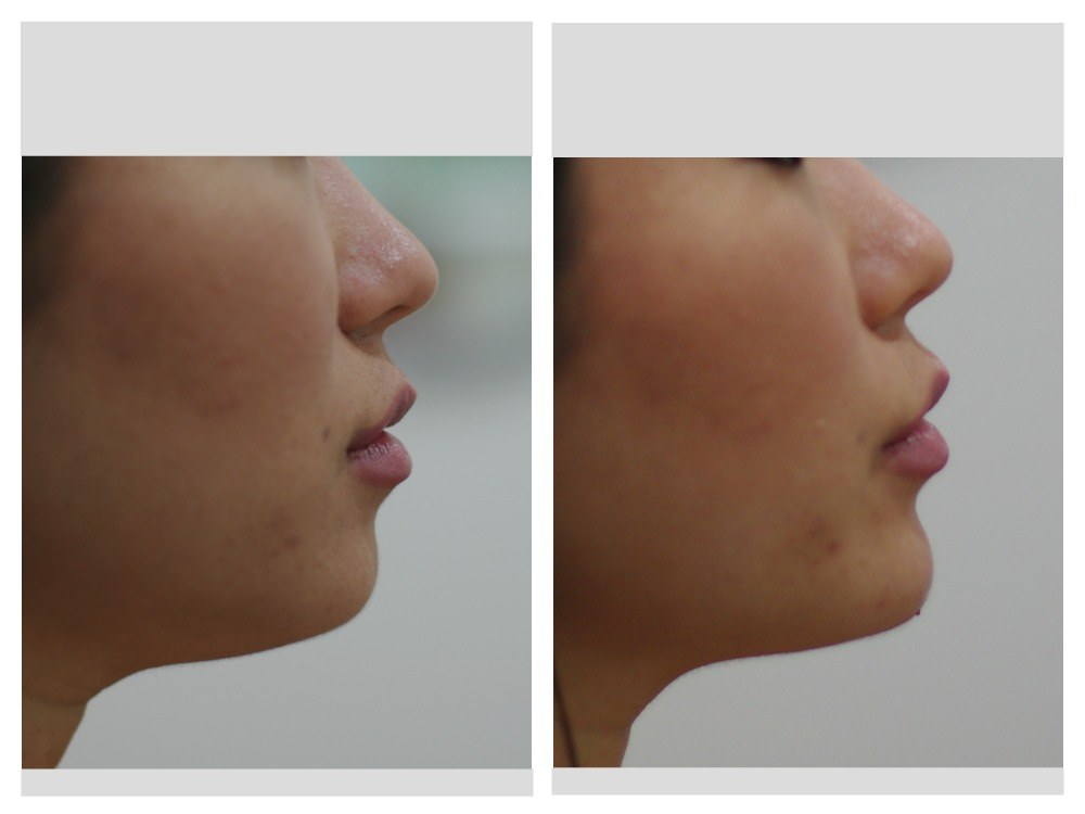 Dermal fillers injection chin before and after Melbourne Ohana Cosmetic