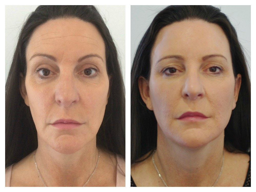 Dermal fillers injection full face rejuvenation before and after Melbourne Ohana Cosmetic
