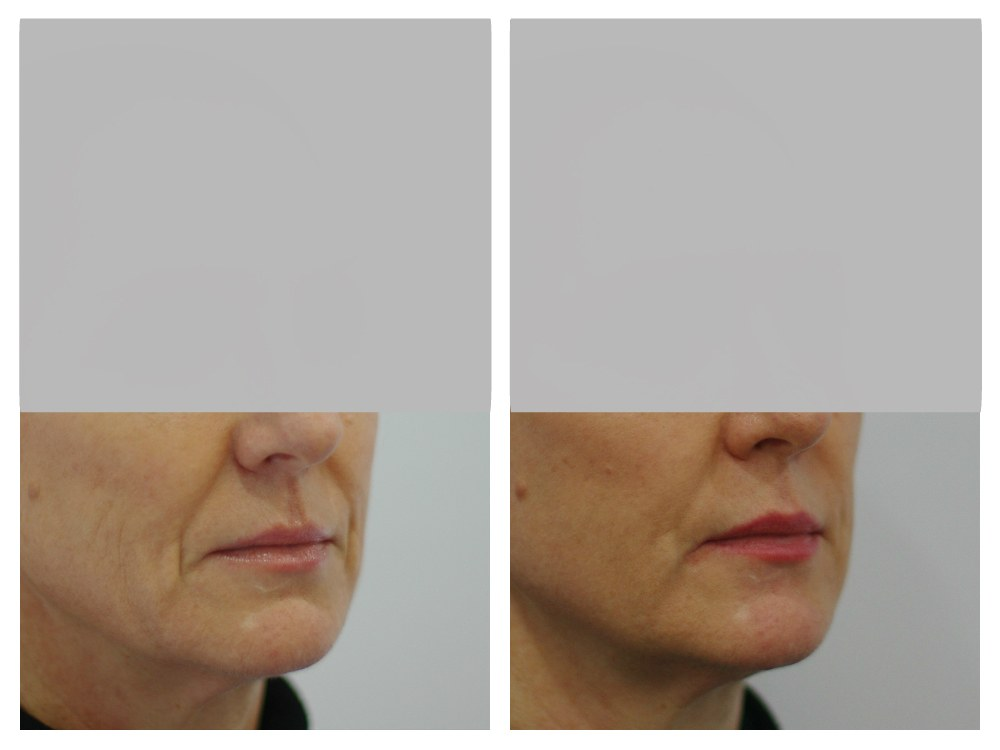 Dermal fillers injection before and after Melbourne Ohana Cosmetic
