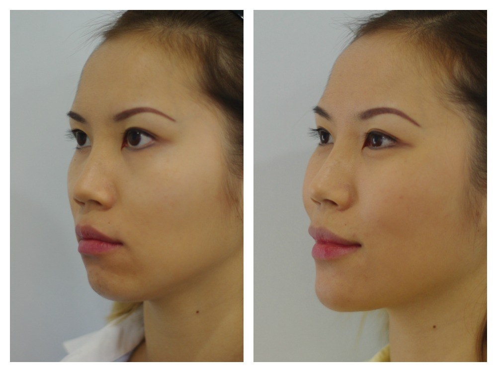 Dermal fillers injection face cheeks chin before and after Melbourne Ohana Cosmetic