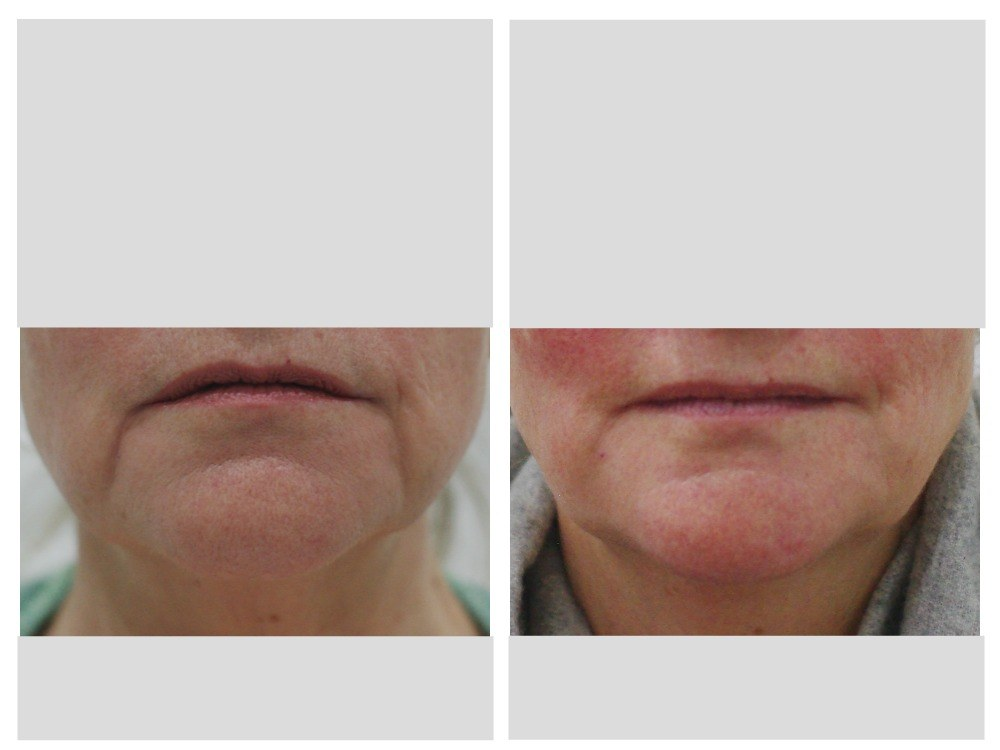 Dermal fillers injection marionette mouth before and after Melbourne Ohana Cosmetic