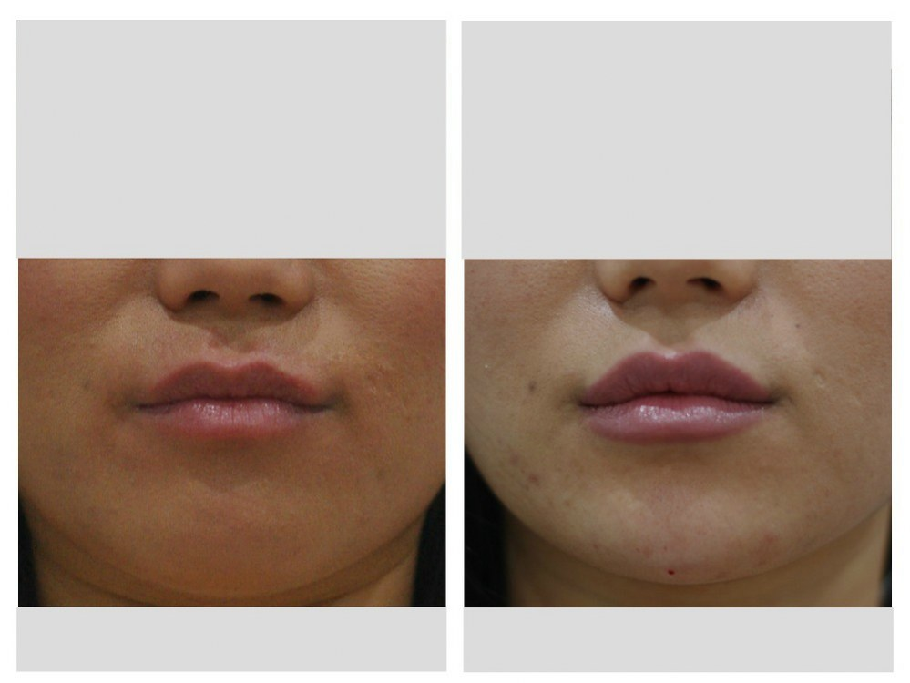 Dermal fillers injection natural lips before and after Melbourne Ohana Cosmetic