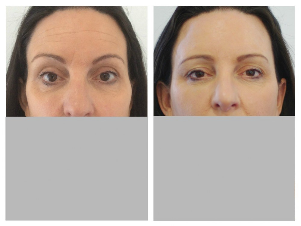 Dermal fillers injection temples before and after Melbourne Ohana Cosmetic