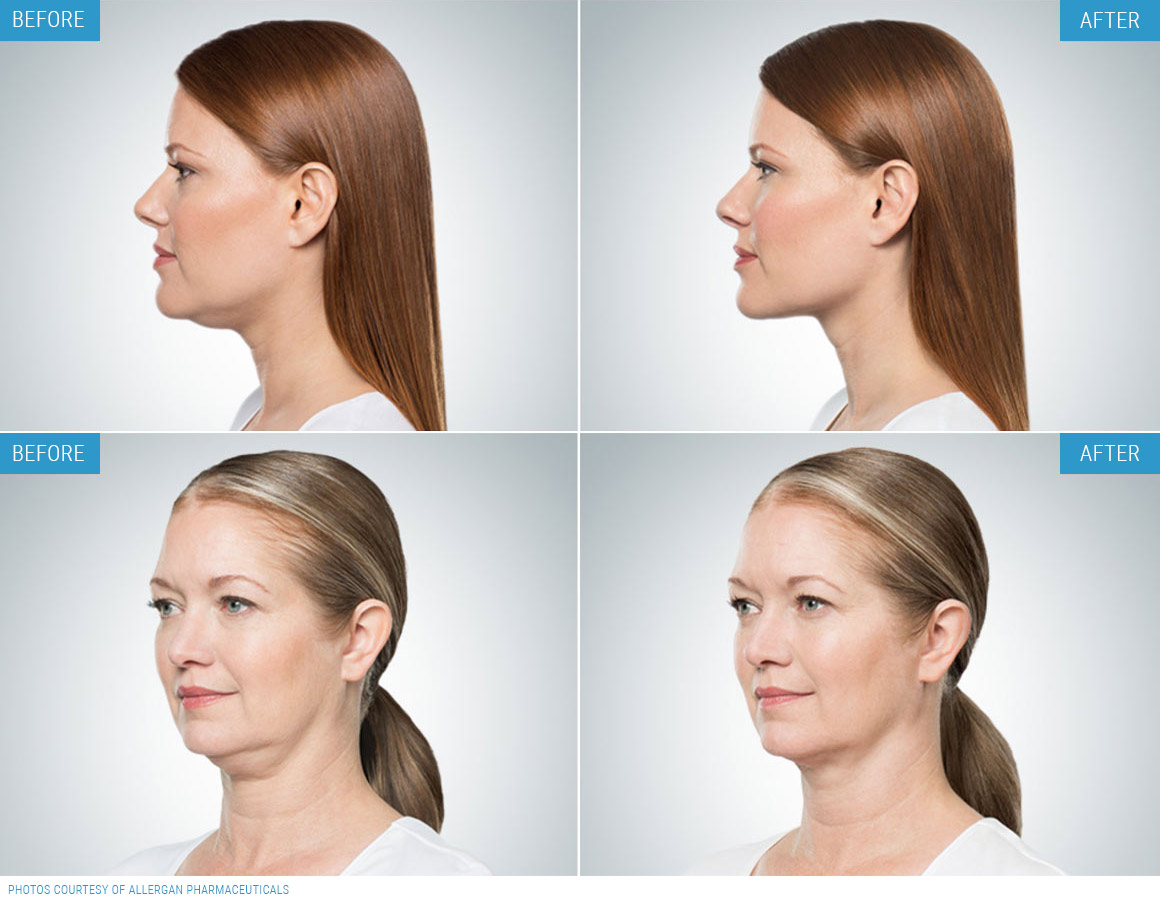 Double Chin Treatment Example
