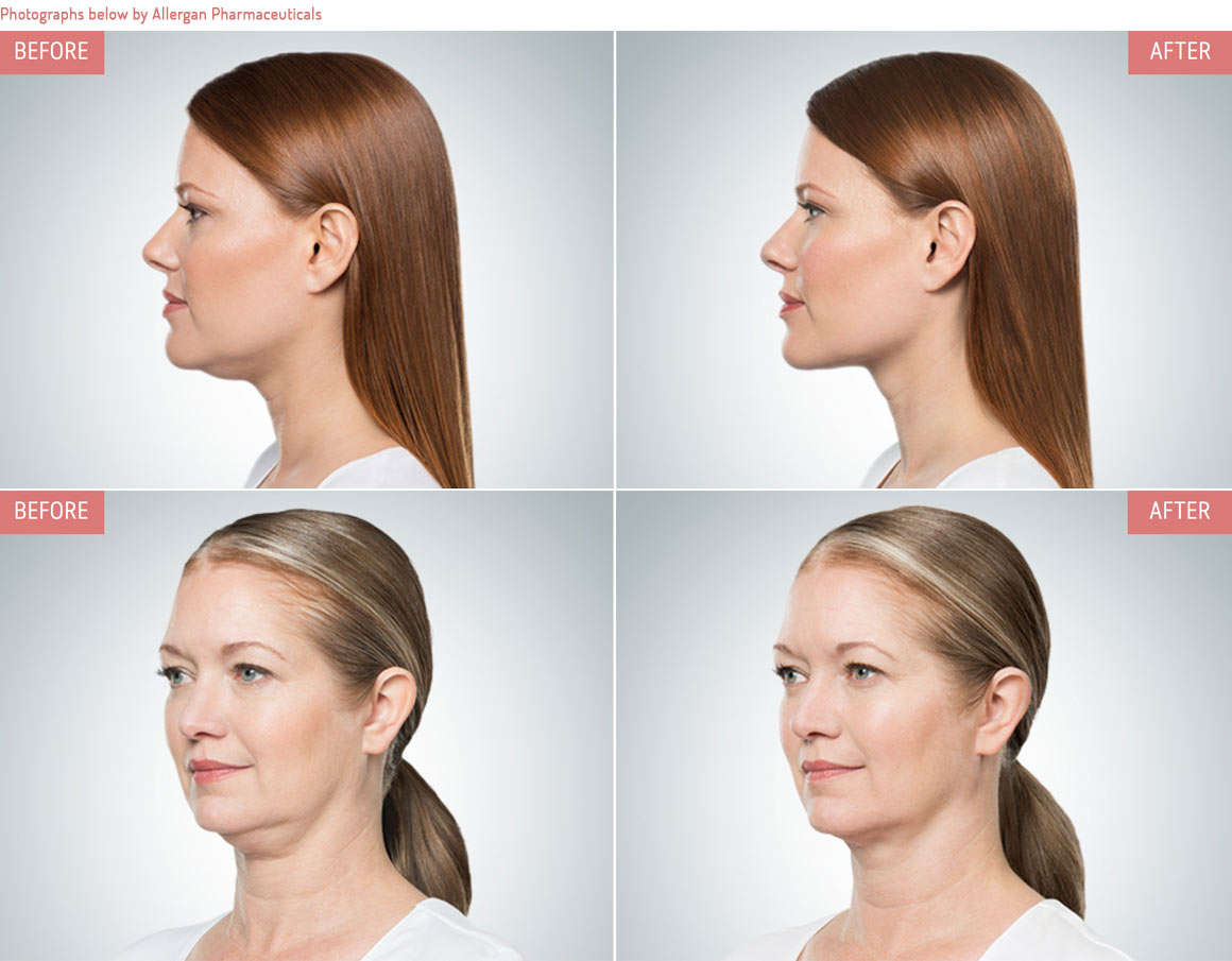 Non-surgical double chin reduction before and after