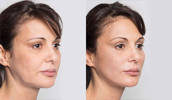 Thread Face Lift Treatment